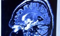 USP detecta 5 subtipos  de câncer cerebral (Cláudio Oliveira/ EPTV)