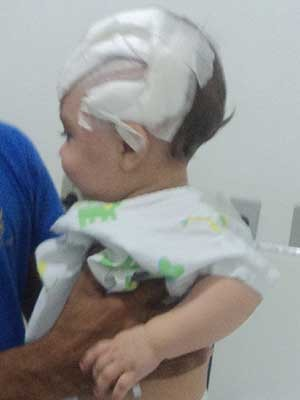 Menino Henzo de Araújo, de 9 meses, teve traumatismo craniano (Foto: Josiani Pereira/VC no G1)
