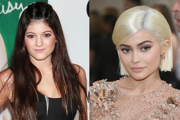 Kylie Jenner em 2010 e 2017 (Foto: Getty Images)