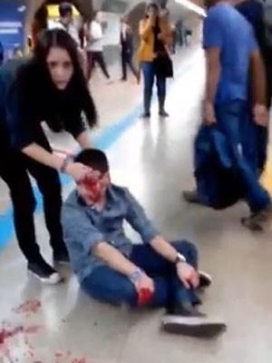 Imagem do jovem ferido foi divulgada em redes sociais  (Foto: Reprodução YouTube)