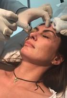 Núbia Óliiver aplica botox e declara:  'Igual bolsa de mulher, não vivo sem'
