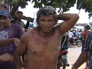 Manifestante foi atingido na nuca por bala de borracha. (Foto: Reprodução/TV Tapajós)