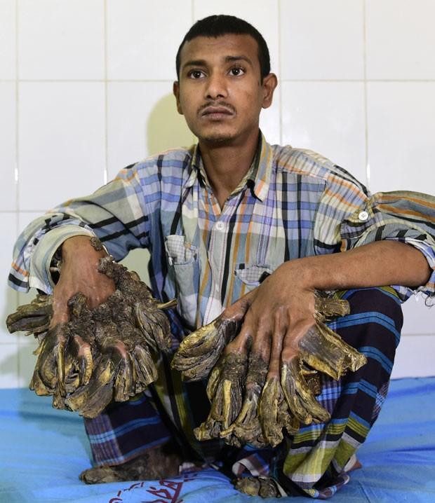 Abul Bajandar desenvolveu verrugas com aparência de casca de árvore nas mãos e pés (Foto: Munir Uz Zaman/AFP)