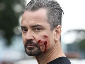 Manifestante ferido durante o confronto  (Foto: Giuliano Gomes/ PRPRESS)