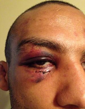 Edson Barboza consigue abrir el ojo después de hematoma y afirma: