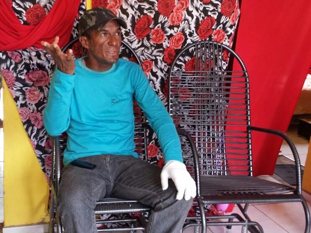 Márcio Ronny da Cruz, de 38 anos, teve 72% do corpo queimado em ataque a ônibus (Foto: Lucas Vieira/G1)