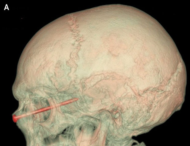 Raio X mostra prego na região da cabeça de um americano de 27 anos (Foto: New England Journal of Medicine/AP)