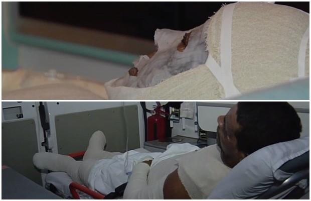 Casal com mais de 60% dos corpos queimados aguarda atendimento em ambulâncias em Goiás (Foto: Reprodução/ TV Anhanguera)