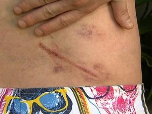 Gomes mostra hematomas nas costas provocados pelos chutes que levou (Foto: Chico Escolano/EPTV)