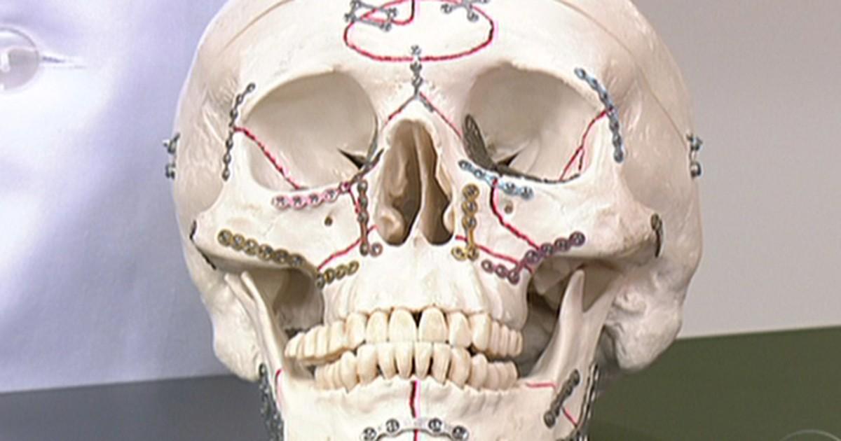 Bem Estar Dente Pode Ser Reimplantado Se Levado Ao Hospital
