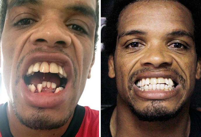 Alan Nuguette mma dentes (Foto: Montagem/Fotos Adriano Caldas/Arquivo Pessoal)