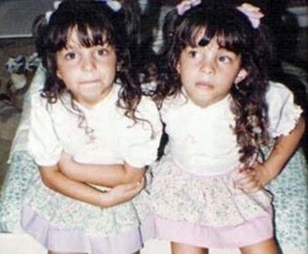 Giselle (à esquerda) e Michelle Batista ainda crianças com cores diferentes (Foto: Reprodução)