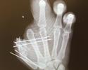 Jogador da NFL troca foto de perfil por raio-x de mão mutilada por acidente