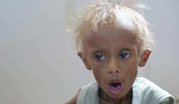 1,5 milhão de crianças passam fome no Iêmen (Foto: BBC)