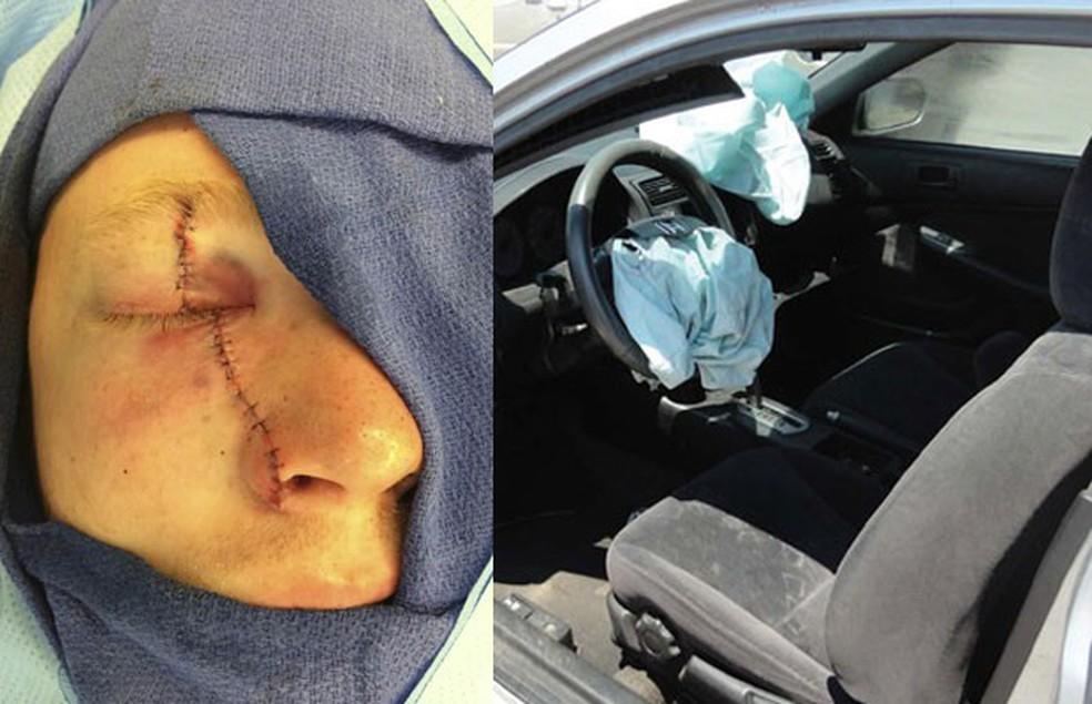 Corey Burdick, uma das vítimas dos airbags da Takata, ficou cego de um olho (Foto: Reuters)