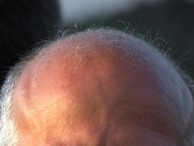 Os cientistas japoneses descobriram a causa, mas ainda não há cura para a calvície  (Foto: Reprodução/Flickr/malehmann/CreativeCommons)