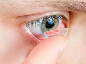 G1 - Tudo o que você deve saber sobre o uso de lentes de contato ... 5de6034876