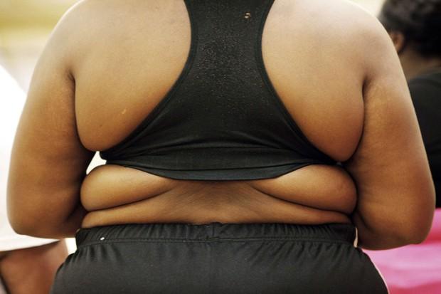 #obesidade (Foto: Finbarr O'Reilly/Reuters)