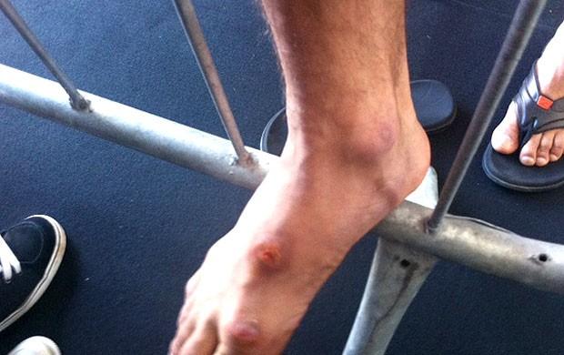 pé ferido José Aldo UFC Rio  (Foto: Raphael Marinho / Globoesporte.com)