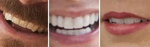 De quem são estes sorrisos? Faça o quiz (Divulgação)
