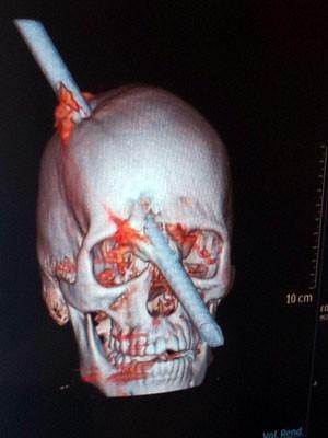 Homem deu entrada em hospital público do Rio com vergalhão encravado no crânio (Foto: Marcelo Elizardo/G1)