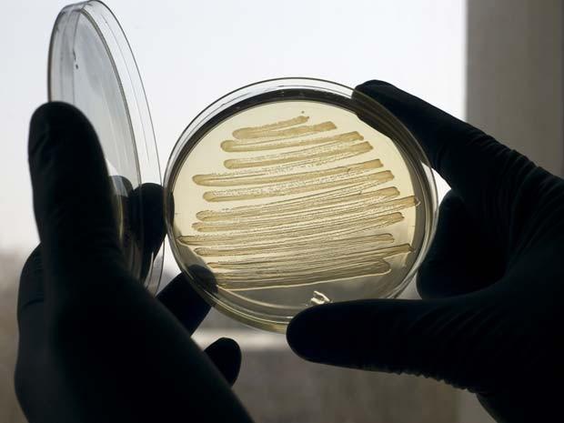 Biodiesel de 'Escherichia coli' foi produzido em laboratório; aumentar a produção é um desafio (Foto: Marian Littlejohn/Divulgação)