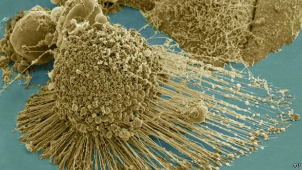 Experimento causou a morte de células de câncer na corrente sanguínea. (Foto: AP Photo)