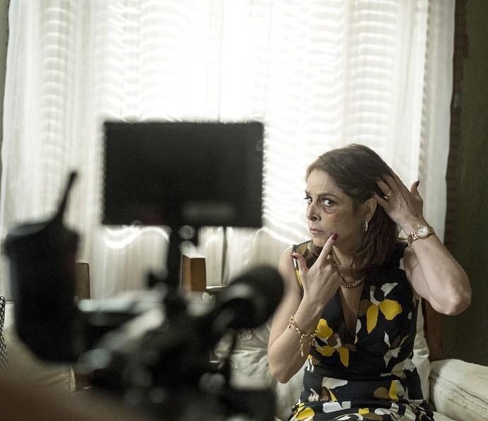 Vânia mostra hematoma que marido lhe causou (Foto: Ellen Soares/Gshow)