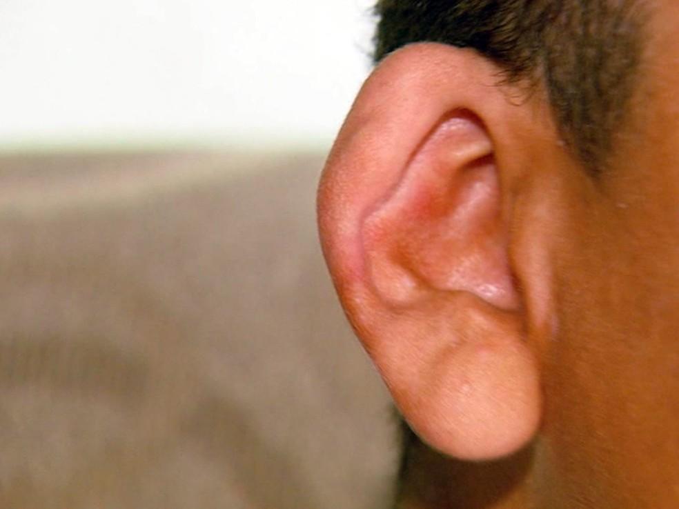 Mutirão vai baratear cirurgias para correção de orelha de abano no Sul de Minas (Foto: Reprodução EPTV)