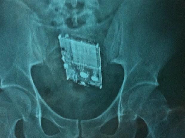 Raio-x revela celular dentro de intestino de detento em Alfenas (MG) (Foto: Polícia Militar)