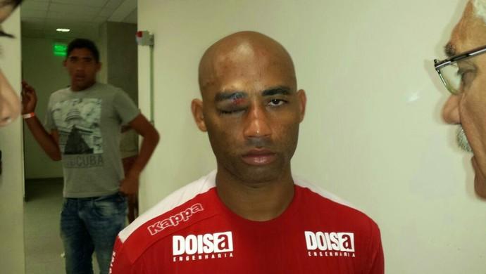 Cascata - olho inchado - América-RN - Clássico Rei (Foto: Sérgio Fraiman / Blog Vermelho de Paixão)