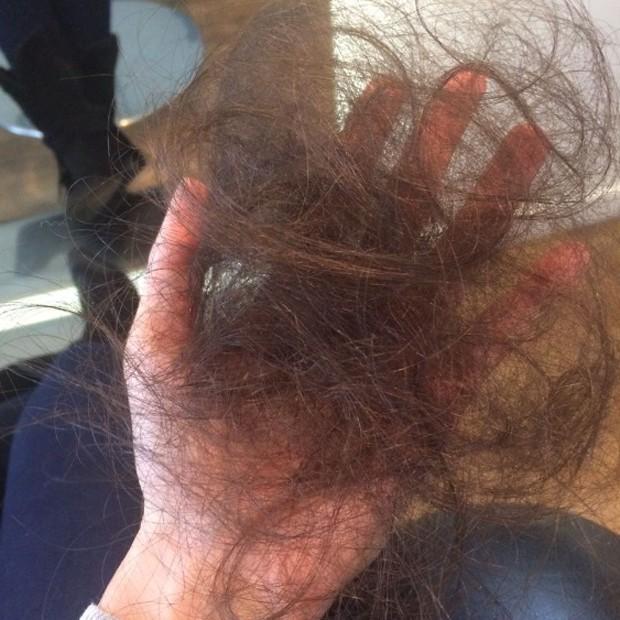 Queda de cabelo de Gi Charaba 01 (Foto: Reprodução/Instagram)