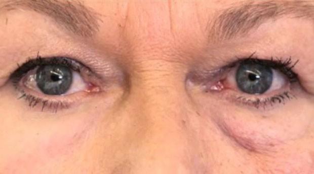 A pele abaixo do olho esquerdo foi coberta com o polímero; a pelo abaixo do olho direito não foi coberta (Foto: BBC/MIT)