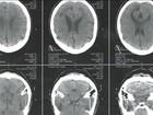 Unicamp cria exame de sangue para identificar doenças mentais