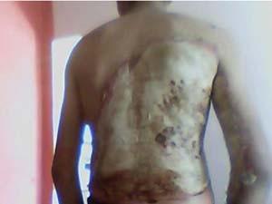 Homem queimado em Araguari (Foto: Arquivo Pessoal)