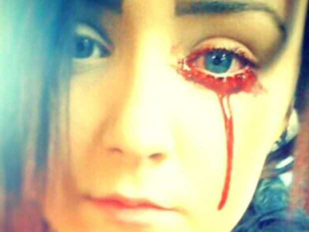 A jovem convive com os sangramentos desde os 14 anos  (Foto: Gareth Iwan Jones)