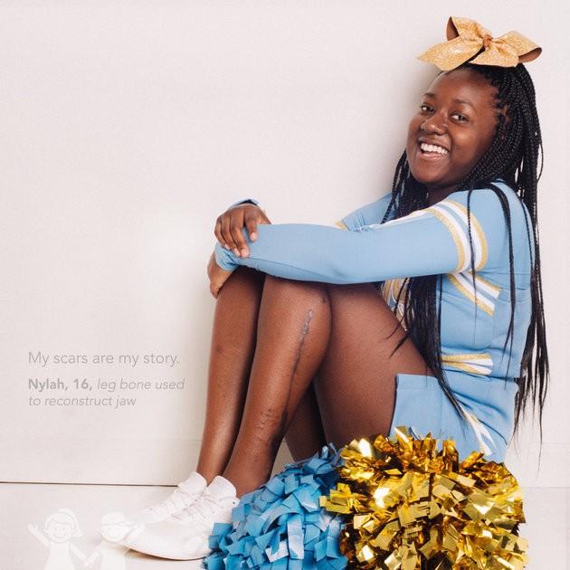 """""""Minhas cicatrizes são minha história"""". Nylah, 16, osso da perna usado para reconstruir mandíbula (Foto: Kate T. Parker/CHOA)"""