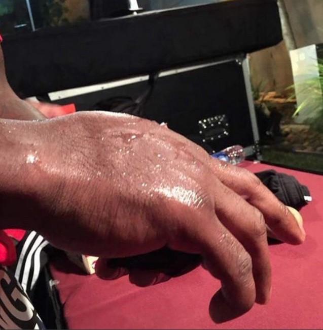 BLOG: Lutador do Bellator quebra a mão direita, que fica em tamanho assustador