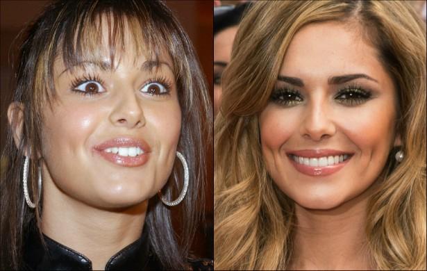 A cantora inglesa Cheryl Cole também arrumou os dentes. Hoje é uma ex-dentucinha. (Foto: Getty Images)
