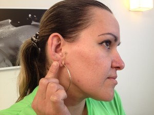 Na auriculoterapia são aplicadas sementes de mostada na orelha (Foto: Sonia Campos/RBS TV)