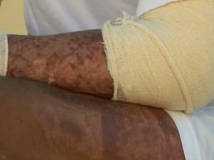 Ex-entregador ficou com algumas cicatrizes, mas tratamento continua (Foto: Reprodução/TV Mirante)