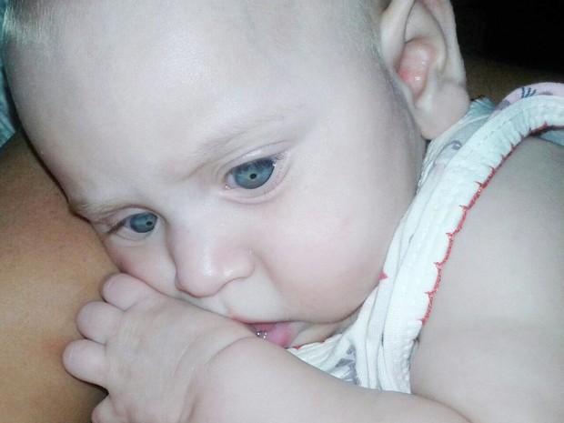 Maria Victoria foi diagnosticada com glaucoma no olho direito e herpes congênita no esquerdo (Foto: Maria da Guia/Arquivo Pessoal)