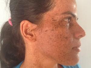 Cláudia Sebastiana mostra pele escura por causa do xeroderma pigmentoso (Foto: Fernanda Borges/G1)