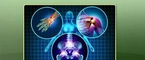 Saiba identificar os fatores de risco e tratamentos para a Osteoporose (Tércio Monteiro/TV Tapajós)