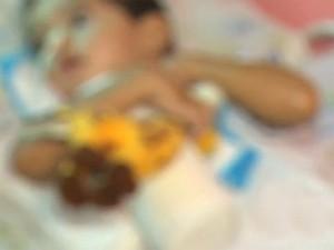 Tratamento de fisioterapia de menino que se afogou é pago pela família (Foto: Reprodução/RBS TV)