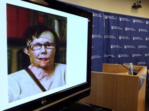 Imagem mostra a americana Carmen Blandin Tarleton antes do transplante de rosto, com a face queimada por soda cáustica (Foto: Charles Krupa/AP Photo)