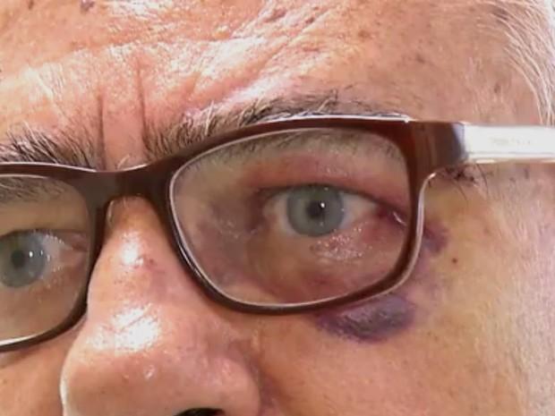 Médico foi agredido com socos e chutes em postod e saúde de Tibau do Sul (Foto: Reprodução/Inter TV Cabugi)
