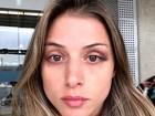 'Fiquei com medo de morrer', revela a bailarina Angela Sousa ao EGO