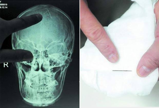 Imagem de raio-X mostra uma agulha de 2,5 centímetros que ficou por 20 anos encravada na cabeça da chinesa Zhou Chaozheng, que mora na província de Hunan. Ela passou por uma cirurgia em outubro de 2010 após começar a sentir dores de cabeça depois de dar à luz. (Foto: Getty Images)