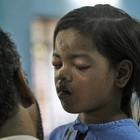 Crianças vivas são resgatadas após queda de prédio na Índia (Rajanish Kakade/AP)